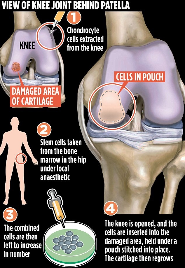 2007 adult stem-cell treatments for knee problems