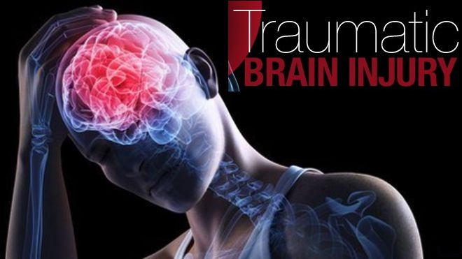 Stem cell therapy appears to have traumatic brain injury treatment effect